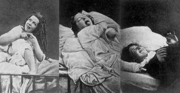 Катастрофические последствия. лоботомия, медицина, страницы  истории