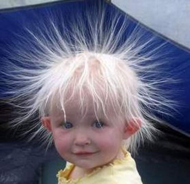 Синдром Нерасчёсывающихся Волос