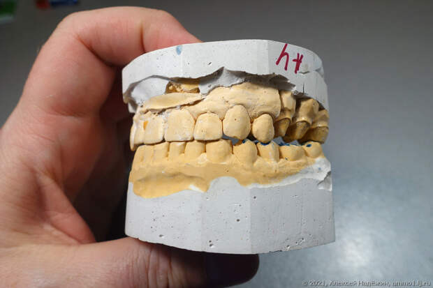 Сходил к стоматологу, вернулся с трофеями