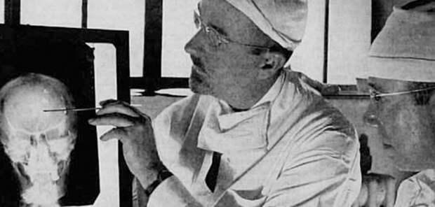 Лоботомия. История потрошения мозгов, или Самая постыдная Нобелевская премия лоботомия, медицина, страницы  истории
