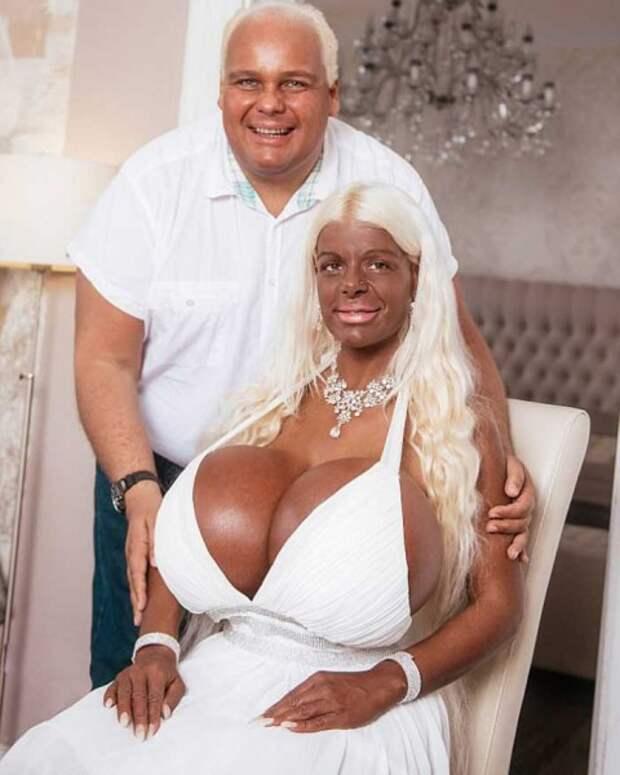 Как выглядит женщина, вложившая в свое тело 60 000 $?