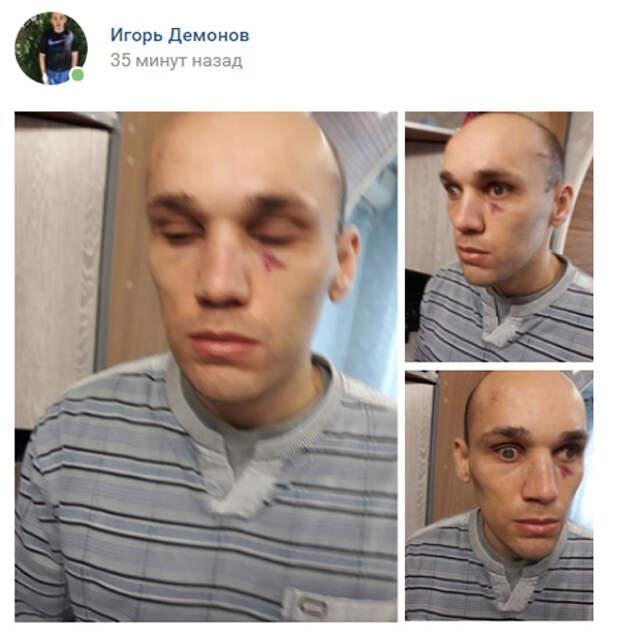 Новый День: Депутат-единоросс от Крыма Шеремет получил плевок и избил обманутого инвалида (ФОТО)