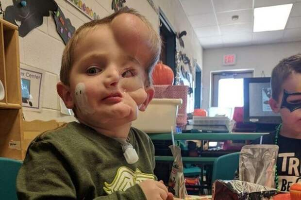 Обезображенный ротвейлерами малыш стал мишенью для насмешек