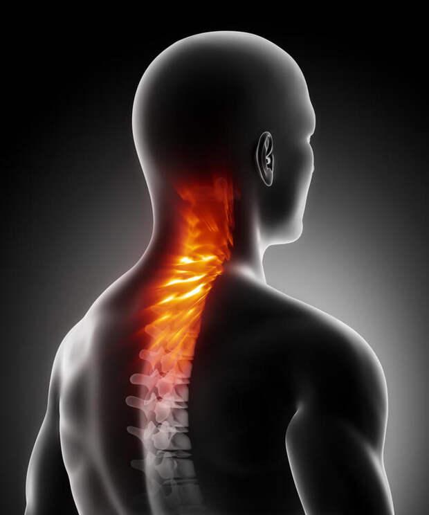 Упражнения от болей в спине и шейном отделе позвоночника