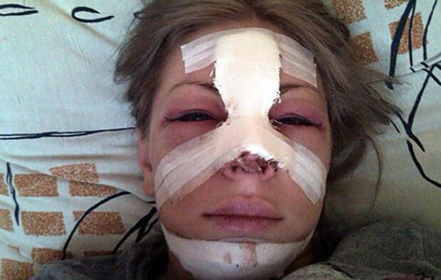 Изуродованная  хирургом Саша Project отсудила у него 2,2 млн рублей