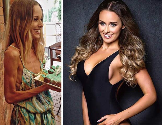 До и после: 20 примеров людей, сумевших побороть анорексию
