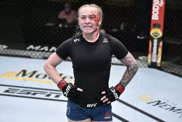«Плакала несколько часов»: как MMA меняют лица красавиц