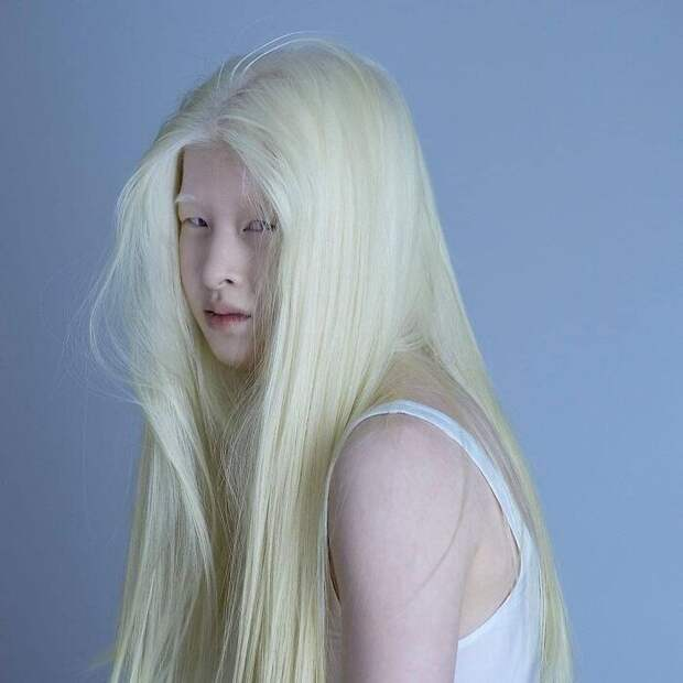 Meet-Chinese-Xueli-Abbing-the-albino-abandoned-when-she-was-a-baby-who-became-a-Vogue-model-60910135c4bf3__700.jpg