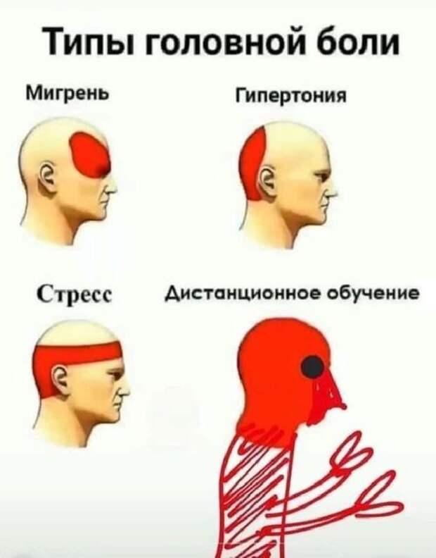 На изображении может находиться: текст «типы головной боли мигрень гипертония стресс дистанционное обучение 은»