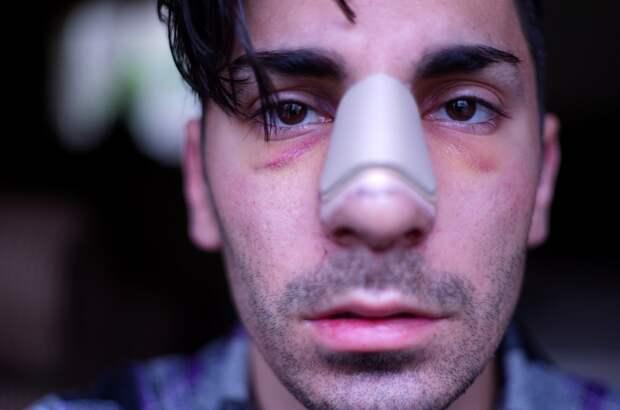 Жителю Удмуртии, разбившему лицо знакомому, придется оплатить его лечение