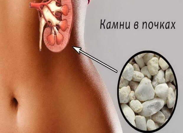 Как изгнать камень из почки лекарствами и травами