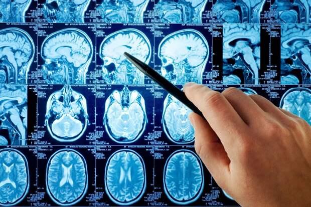 Складка на мочке уха может предсказать инсульт - израильские ученые