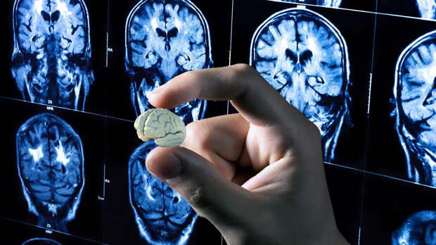 Человеческий мини-мозг: лечение главного органа может выйти на новый уровень