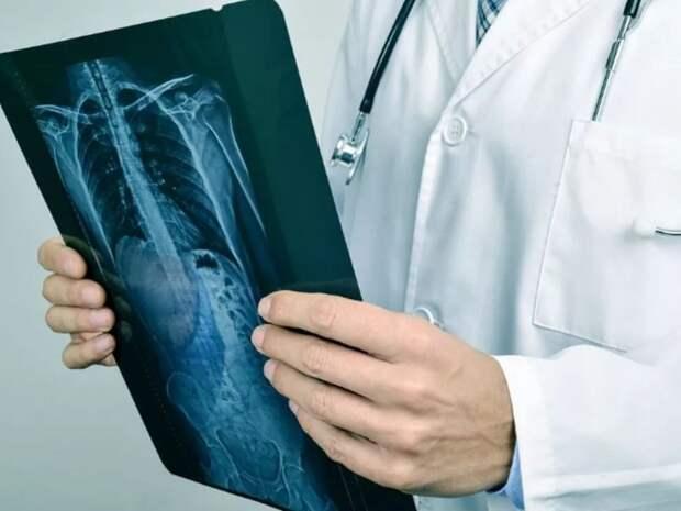 8 главных веществ для хорошего состояния легких