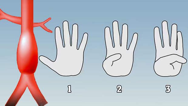 Палец покажет: как заранее распознать у себя аневризму аорты