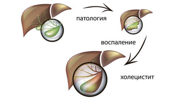 Болезнь гурманов:Советы восточной медицины при холецистите
