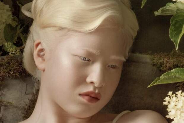 Meet-Chinese-Xueli-Abbing-the-albino-abandoned-when-she-was-a-baby-who-became-a-Vogue-model-6090f7923c9d4__700.jpg