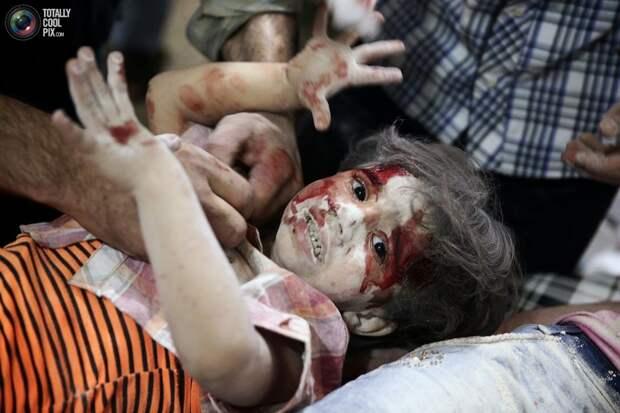 Раненный ребёнок