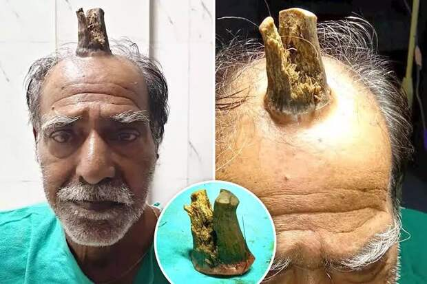 Человек-единорог: 74-летнему индийцу удалили жуткий нарост на голове