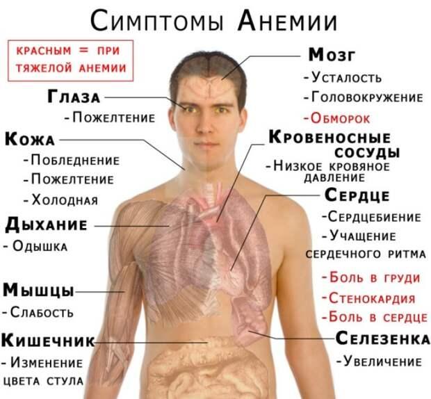 Признаки анемии: как распознать и обезвредить