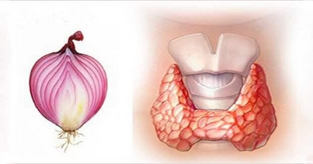 лук щитовидная железа