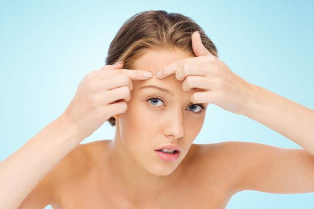 Маяки на вашей коже: о чём говорит расположение прыщей на разных частях тела