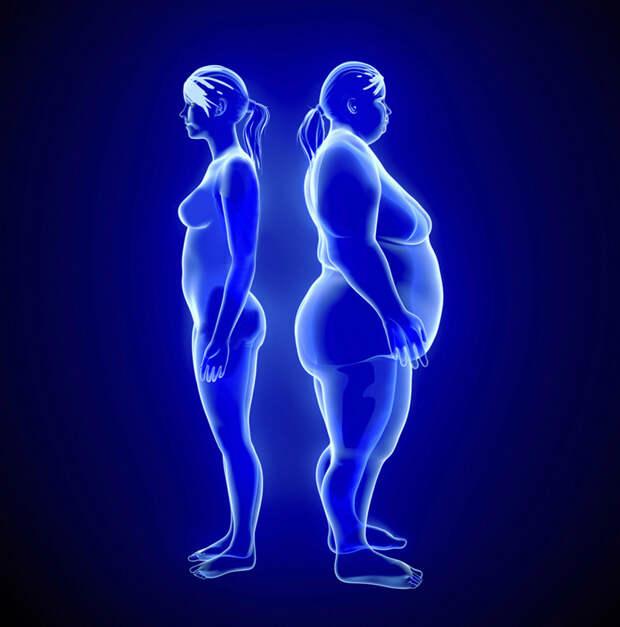 Метаболический синдром: Что делать при нарушении обмена веществ?