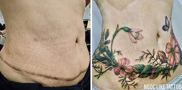 25 татуировок для перекрытия шрамов идругих дефектов нателе