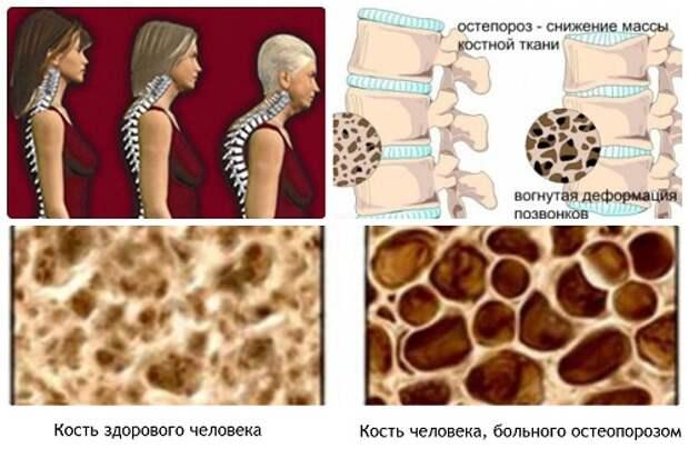 Рецепты лечения остеопороза
