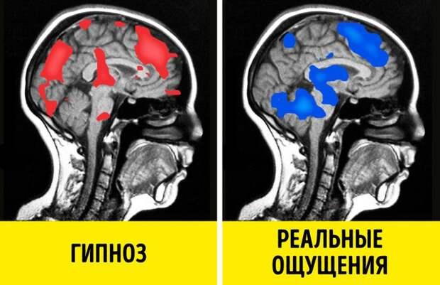 15научных фактов огипнозе, которые отличают его отлюбых эзотерических практик