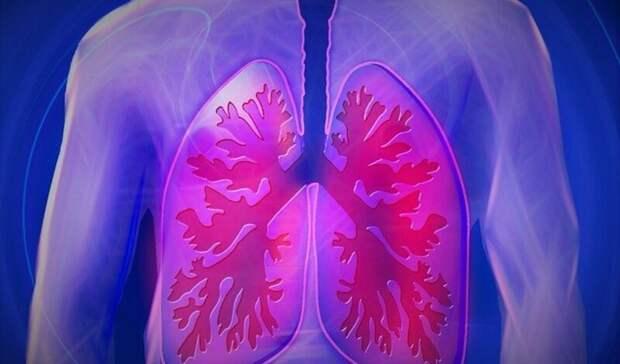 Никто не умер от внебольничной пневмонии за минувшие сутки в Карелии