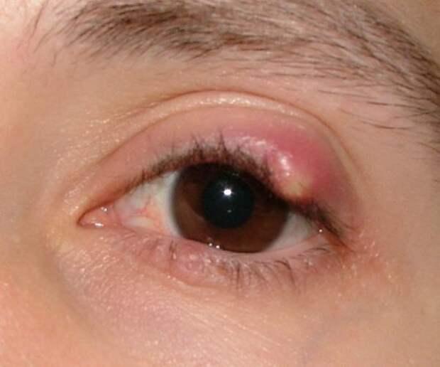 Самые тяжелые ситуации в офтальмологии (немного жести)