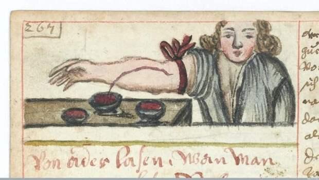 Лечение всех болезней: пускаем кровь медицина прошлого, медицинские истории