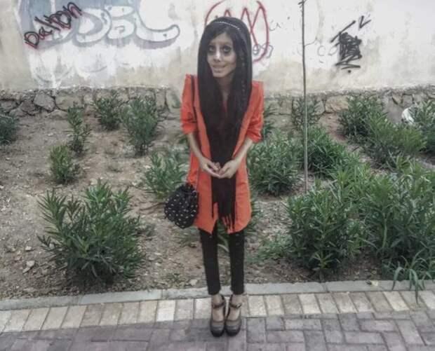 Иранка горела желанием превратиться в Анджелину Джоли Сахар Табар, анджелина джоли, внешность, изменение, иран, лицо, операция, пластика, фигура