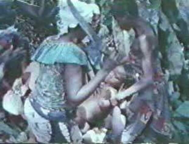 Женское обрезание