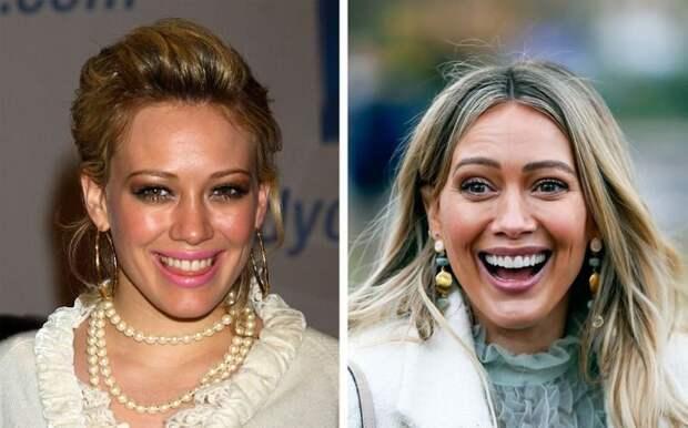 Как изменились улыбки знаменитостей после того, как они исправили свои зубы
