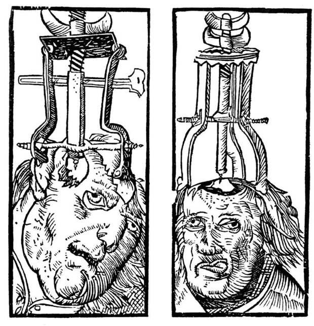Мигрень: делаем дырку в голове медицина прошлого, медицинские истории