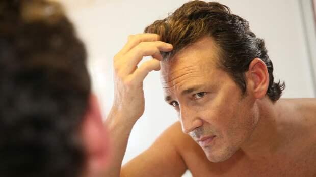 Названы четыре главные причины выпадения волос