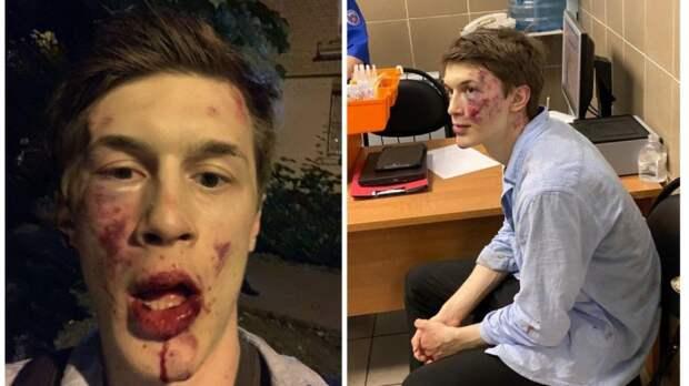 У Жукова разбито лицо и сердце, а у либералов опять «кровавый режим»