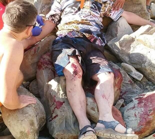 В Новороссийске мужчина упал с 20-метровой скалы