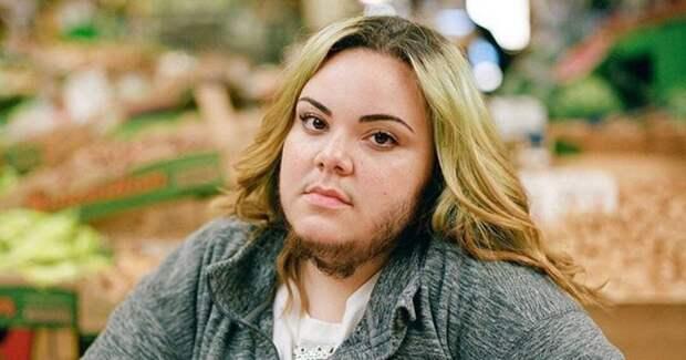 «Меня обзывали раковой опухолью»: история бородатой девушки Альмы Торрес