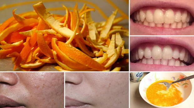 Для чего может пригодится шкурка от массы съеденных в декабре мандаринов