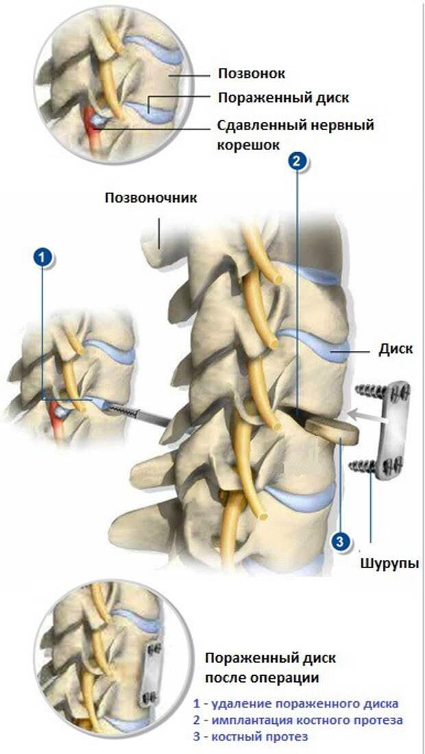 Остеохондроз шейного отдела позвоночника: эффективное лечение