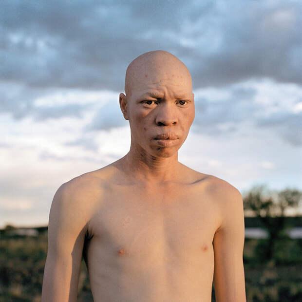 За что Альбиносов в Танзании рубят на куски?