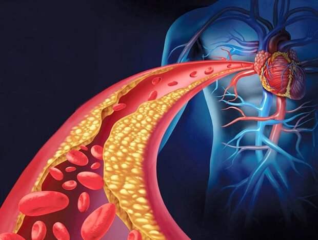 Чистка закупоренных артерий с помощью питания: ТОП-8 продуктов