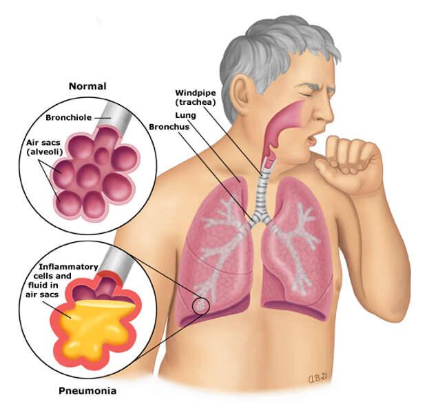 7 видов кашля и их значение