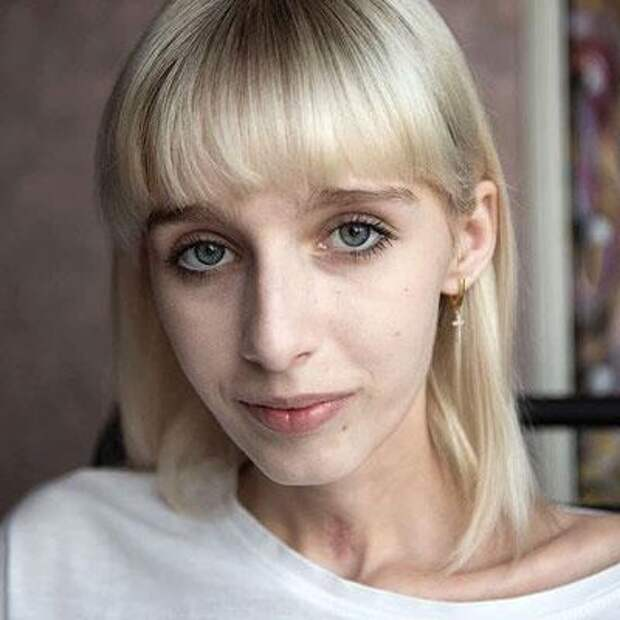 Ева Витман, 16 лет, травмы от падения с высоты, спасет восстановительное лечение, 806000₽