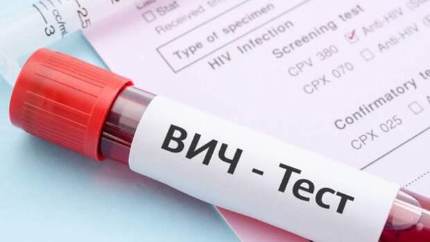 В Твери можно будет бесплатно узнать свой ВИЧ-статус