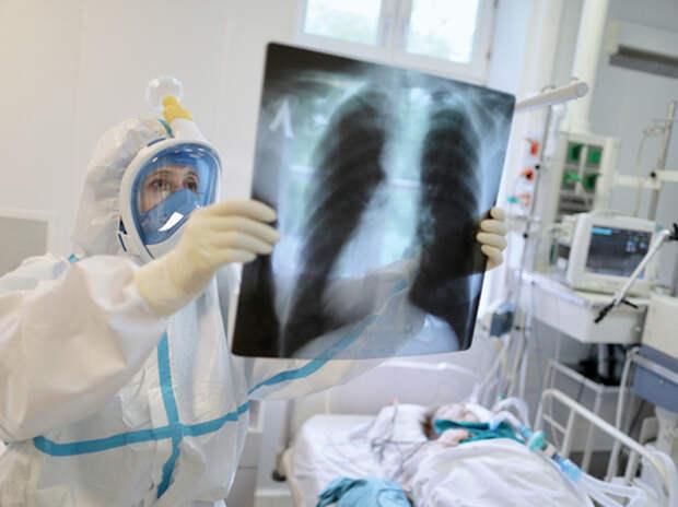 """Диагностика коронавируса с помощью компьютерной томографии стала частью """"замкнутого круга"""""""
