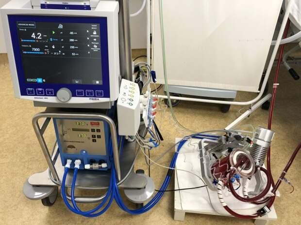 Врачи в Удмуртии спасли пациента со 100% поражением лёгких с помощью процедуры ЭКМО